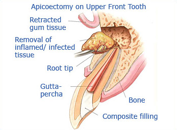 What is endodontic surgery?