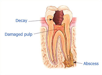 Dr. Malek San Jose Endodontic slide 1