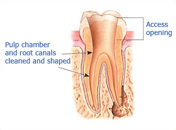 Dr. Malek San Jose Endodontic slide 2