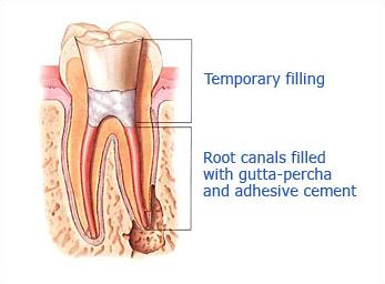 Dr. Malek San Jose Endodontic slide 3