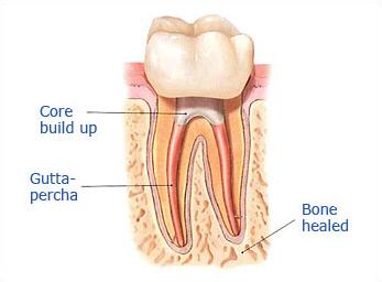 Dr. Malek San Jose Endodontic slide 4a