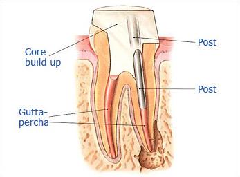 Dr. Malek San Jose Endodontic slide 4b